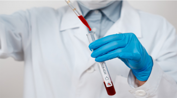 Profissional de saúde, com luva, segura tubo de ensaio em que coloca sangue de teste do novo coronavírus